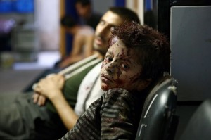 Syrian boy injured in Assad bombing (Abd Doumany:AFP:Getty Images) Sept 28 2015
