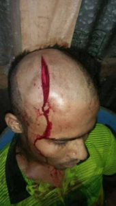 Rohingya man attacked June 28 2017