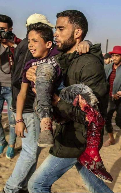 Image result for images israeli shooting boy leg