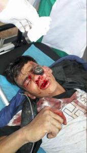 Child gas bomb victim GRM Apr 27 2018