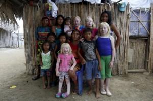 Albino family:Panama (Reuters) June 15 2015