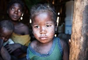 Madagascar (EPA:SHIRAAZ MOHAMED) Sept 22 2015