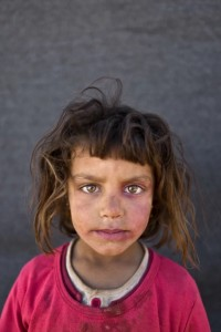 Mona Emad, five, from Hasakah, Syria