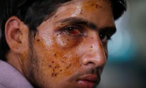 Kasmir man with pellet injuries (REUTERS:Danish Ismail) July 15 2016