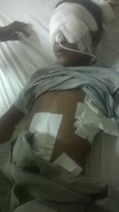 Pellet injuries 3 Aug 7 2016