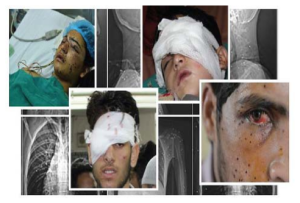 Pellet injuries to eyes (Greater Kashmir)