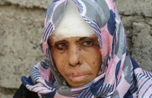 Woman Qayyara, Iraq, August 29, 2016. REUTERS:Azad Lashkari) Sept 1 2016