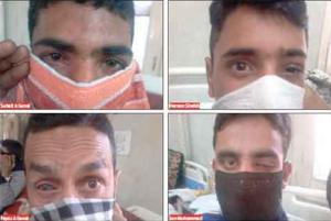 Pelletinjuries to eye (Greater Kashmir) Oct 25 2016