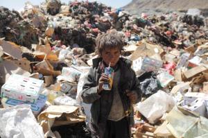 Child in Yemen (REUTERS:Mohamed al-Sayaghi) Nov 17 2016