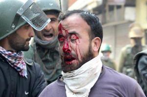 Day 117 in Kashmir (40 civilians injured in Soura) Nov 3 2016