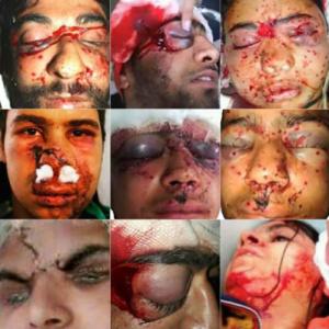 Faces of Indian democracy in Kashmir (Freedom for Kashmir) Dec 6 2016
