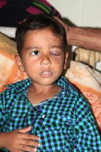 Kashmiri boy with pellet injury Feb 4 2017