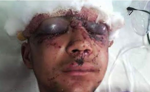 Young Kashmiri boy with pellet injuries (via Rising Kashmir)