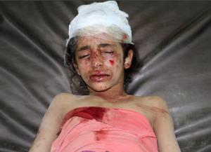 Yemen bombing victim (REUTERS:Naif Rahmah) Mar 15 2017