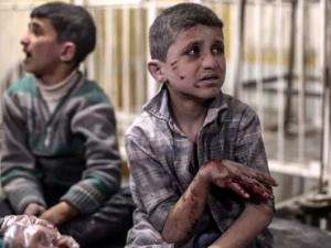 Injured kids in field hospital Douma, Syria after Syrian airstrikes (Mohammed Badra:EPA) May 9 2017