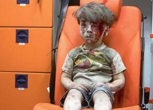 5-year-old Omran Daqneesh Sept 2016