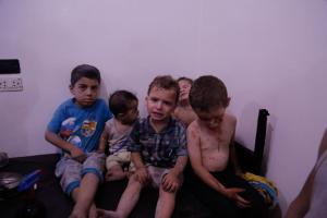 Injured kids at Arbin hospital after July 23 2017 air strike (SAMS) July 26 2017