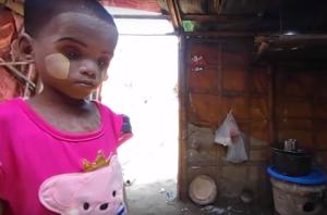 Starving Rohingya girl (ROSMAIDA BIBI (YOUTUBE)  July 8 2017