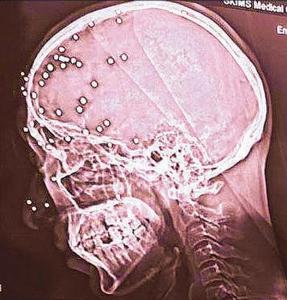 CT scan of pellet victim (Umar Beigh) Sept 25 2017