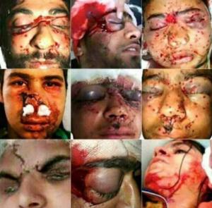 Kashmir pellet victims collage (from Kashmir Freedom) Sept 26 2017