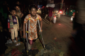 Ro girl on crutches (Paula Bronstein:Getty Images) Sept 22 2017
