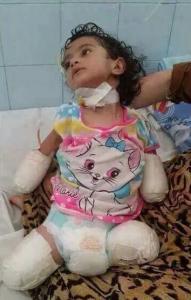 Free Syria Media hub photo of injured child amputee Oct 30 2017