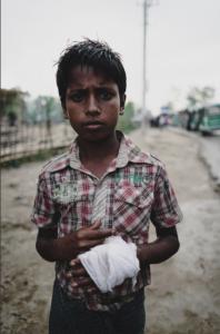 Injured Ro boy (Shafiur Rahman) Oct 3 2017