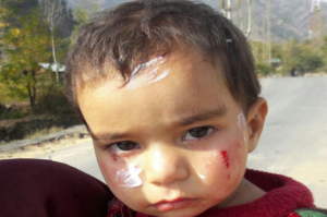 One0year-old Anouba Gulzar (Greater Kashmir) Oct 23 2017