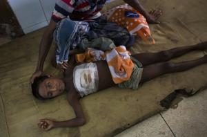 Ro boy with bullet wound (Bernat Armangue:AP) Oct 4 2017