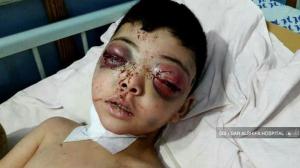 6-yr-old Oyis al-Taki at Dar AlShifa Hospital Jan 12 2018