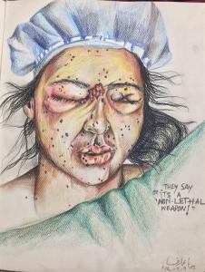 Pellet victim by Hina Arif