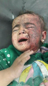 Syrian bombing victim in MaarDabess town, southern Idlib *White Helmets) Jan 28--posted Jan 20 2018