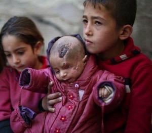 Syrian child Jan 25 2018