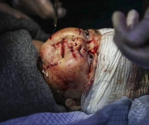 Syrian child in east Ghouta (Muhammed Najem) Jan 2018