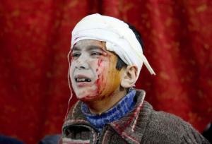 Boy in Eastern Ghouta Feb 20 (Anadolu Agency : Getty Images) Feb 20 2018