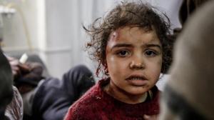 Child in E. Ghouta Mar 23 2018 (Anadolu)