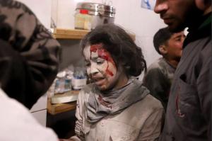 E Ghouta child (Amer Almohibany) Mar 10 2018