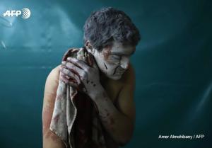 Injured man in Eastern Ghouta (Amer Almohibany:AFP) Mar 20 2018