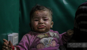 Syrian infant injured Mar 18 2018