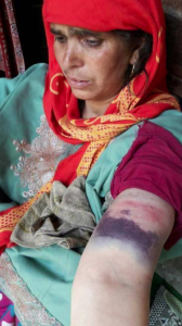 Brutalized Kashmiri woman (QNS News 24x7) Apr 7 2018