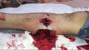 Butterfly bullet wound at Great Return March (2) Apr 27 2018
