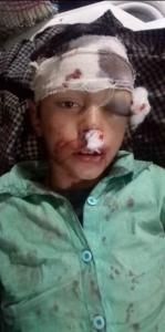 Critically injured Kashmiri boy (Kashmir Lobby Group) Apr 22 2018