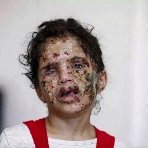 Yemeni child scarred by chemical weapons Apr 17 2018