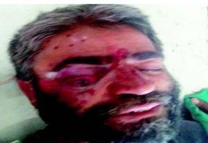 Abdul Rasheed Wani (50) of Sumbal, Kashmir May 11 2018 (Greater Kashmir) May 25 2018