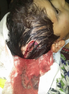 Kashmir; 9-year-old boy from Sopore injured by CRPF May 19 2018