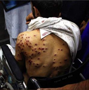 Pellet gun victim in Kashmir (Parlina Aida on Twitter) Aug 29 2018
